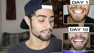 TESTING CREST 3D WHITE STRIPS! FULL 10 DAY REVIEW | Konnor Andrews(Hey guys! so I have been testing out these crest white strips for a few weeks now and I love them! I hope to get more soon and make another video on it!, 2017-01-26T17:32:04.000Z)