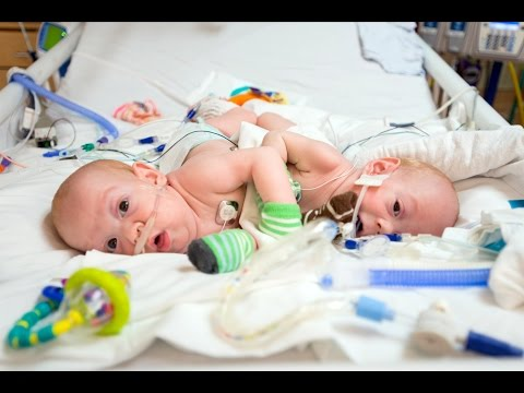 rare-conjoined-twins-successfully-separated-by-nemours-surgeons-at-wolfson-children's-hospital