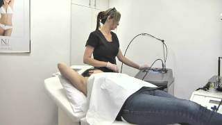 Hair Laser Removal From Nu Cosmetic Clinic Thumbnail
