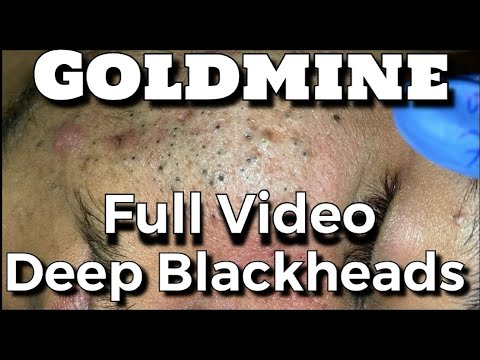 Goldmine Of Blackheads Full Video By Dr.Lalit Kasana