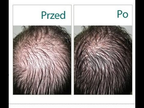 czy suchy szampon może powodować wypadanie włosów