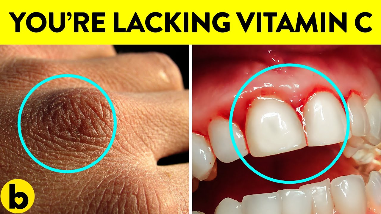 Signs your Body Is Lacking Vitamin C & Its Benefits