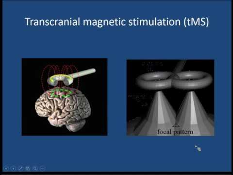 Mark Holmes, M.D. - Transcranial Direct Current Stimulation for Epilepsy