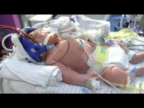 Cool Cap Technology At Phoenix Children S Hospital Youtube