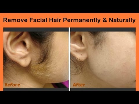 How To Remove Facial Hair Permanently Naturally At Home 3 Easy