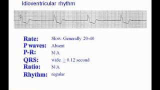 ECG: Idioventricular Rhythm