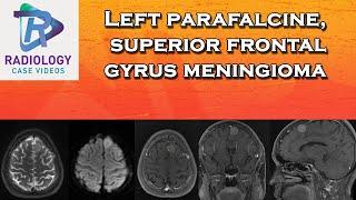 Left parafalcine , superior frontal  gyrus  meningioma