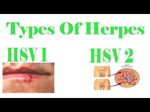 Herpes Herpes Herpes Herpes Herpes Herpes? 2