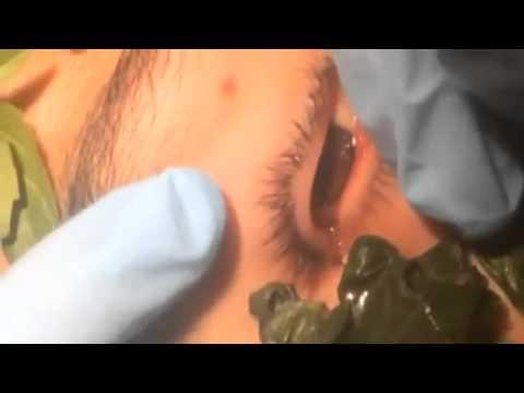 Dùng lá húng quế dụ bắt con sâu dài 3cm trong mắt chàng trai