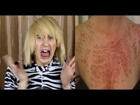 IPL Laser Hair Removal BAD SIDE EFFECTS! - YouTube
