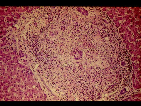 Primary Biliary Cirrhosis Pathology mini tutorial
