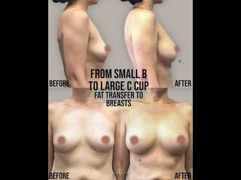natural-breast-augmentation.-increase-breast-size-naturally.-from-small-b-to-large-c-cup.