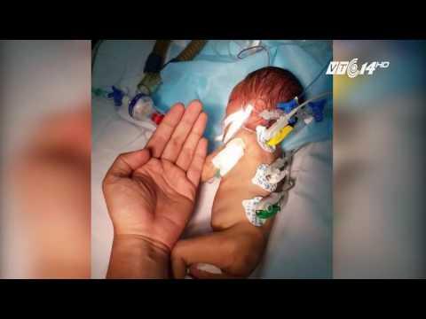 (VTC14)_Mổ tim cho bé sơ sinh chỉ lớn hơn bàn tay bác sỹ