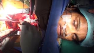 Uyanık  Açık Kalp Ameliyatı | Awake Heart Surgery by Dr. Nisarga [1080p]