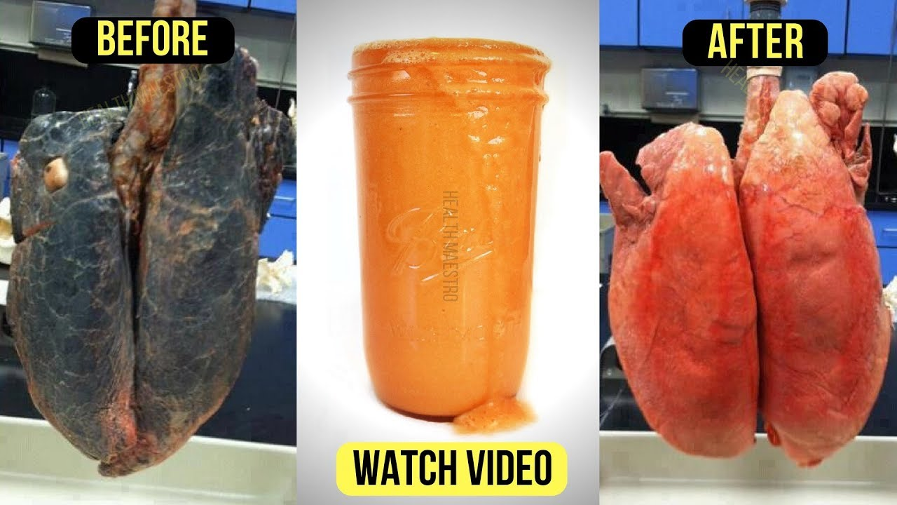 Only 2 TBSP Of this Homemade detox Drink to Cleanse Smokers Lungs Naturally