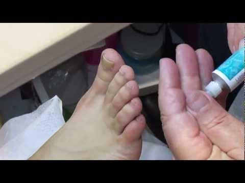 Toenail Fungus Treatment A Fast Cure For Toenail Fung