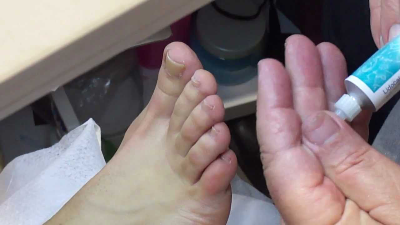 How To Remove an Ingrown Toenail in 2 Minutes - YouTube