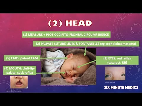 Newborn Exam OSCE - Overview In 6 Minutes