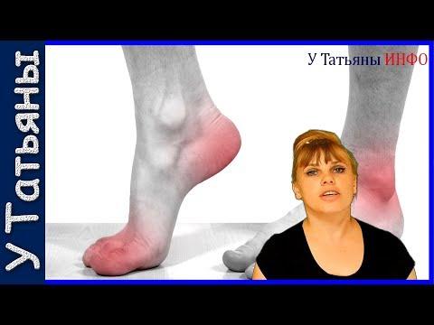 Ноют ноги - Неврология - бесплатная консультация врача