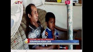 Meresahkan, Kera Liar Serang 3 Bocah di Kota Probolinggo - BIP 16/08