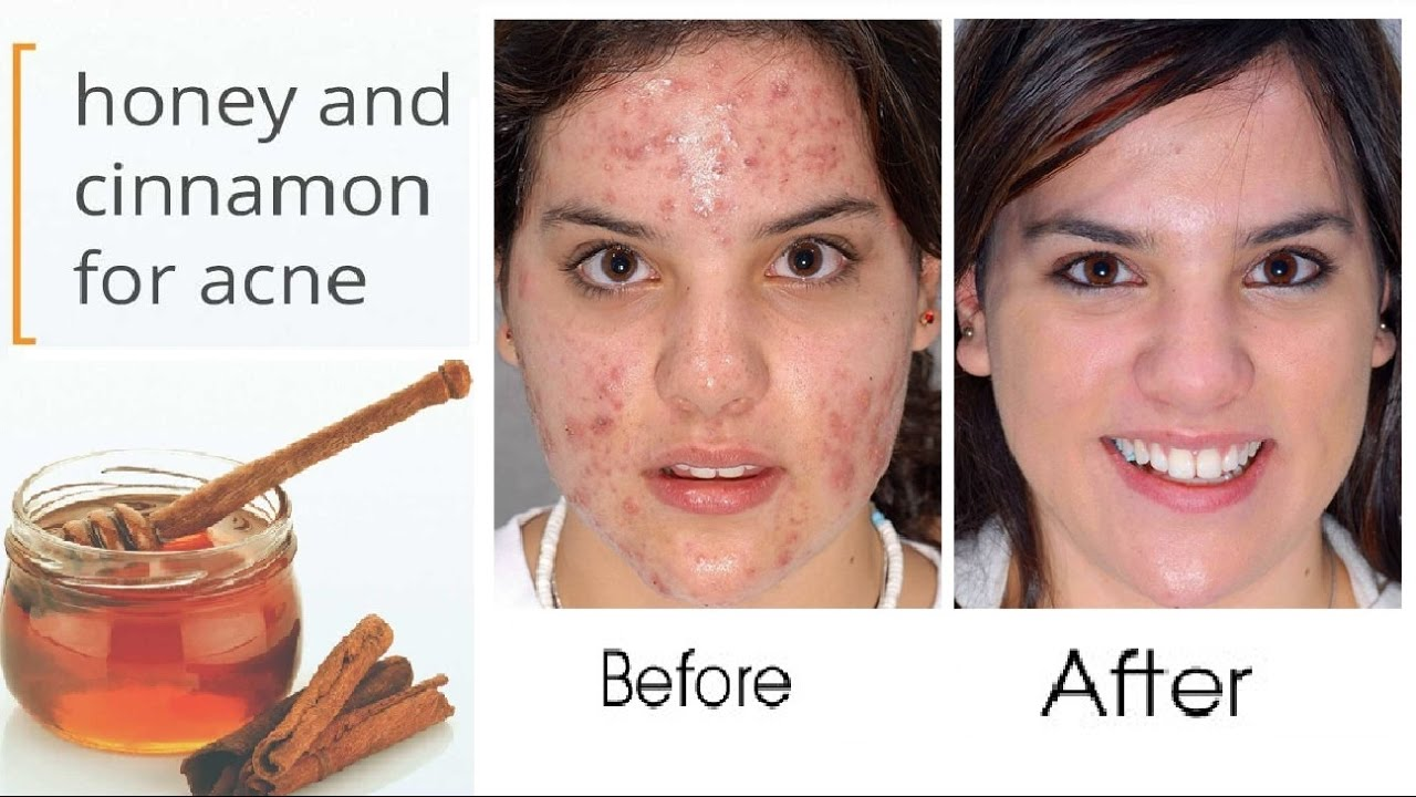 How To Get Rid Of Acne Overnight With Honey
