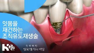 잇몸을 재건하는 조직유도재생술 - (20181114_6…