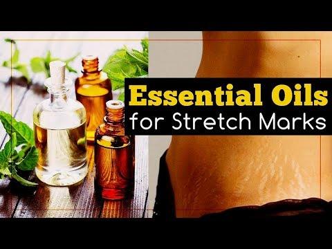 6-essential-oils-for-stretch-marks