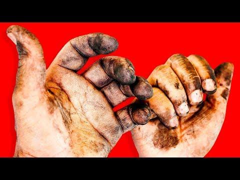 6 Ay Ellerinizi Yıkamazsanız Neler Olur?