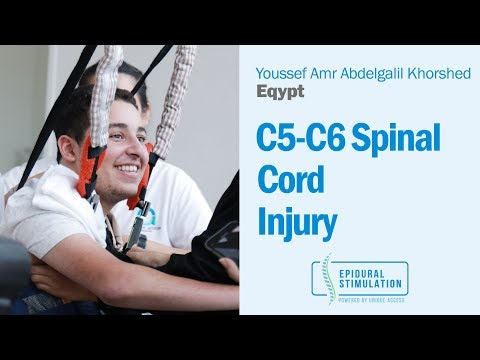 C5-C6 Spinal Cord Injury Patient Youssef Talks About His Epidural Stimulation Experience