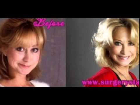 Felicity Kendal plastic surgery before and after photos