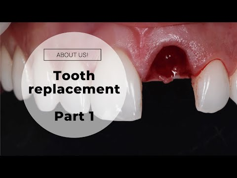 DENTAL IMPLANT (Graphic Images - Dentist) - Immediate Front Tooth Replacement Part 1 (Surgery)