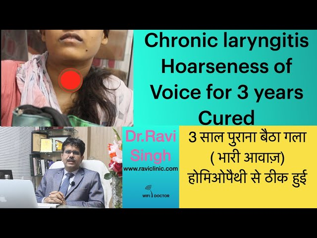 Chronic laryngitis- Hoarseness of Voice for 3 years Cured with Classical Homeopathy -DrRavi