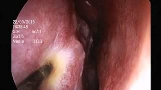 ΚΟΓΧΕΣ ΡΙΝΙΚΕΣ /  L.A.S.E.R PHOTOCOAGULATION OF INFERIOR TURBINATES