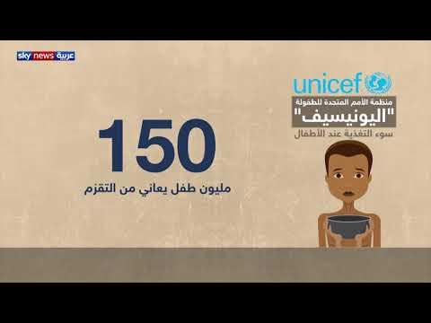 طفل من كل 3 أطفال في العالم دون الخامسة يعاني سوء التغذية  - 14:54-2019 / 10 / 16