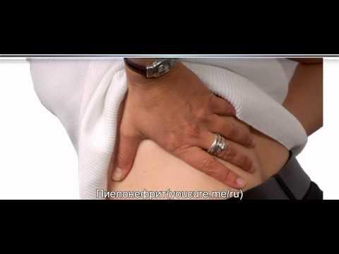 Хронический пиелонефрит - симптомы и лечение