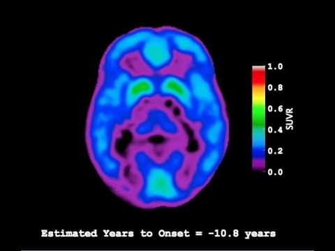 Video of Amyloid-Beta Deposition in Autosomal Dominant Alzheimer's Disease