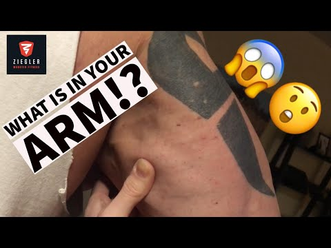 Extreme and Crazy Tricep Cramping After Training (1:38 is nuts)