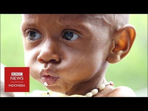 'Krisis gizi buruk di Asmat adalah lingkaran setan'