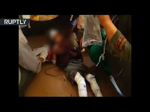 GRAPHIC: Yemeni children wounded in alleged coalition airstrike