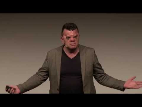 Own your face | Robert Hoge | TEDxSouthBank