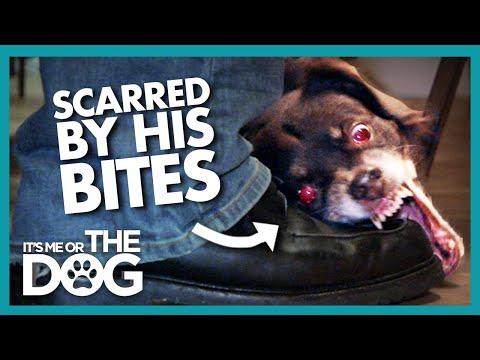 Owner Left Scarred after Dog's Possessive Bites | It's Me or the Dog