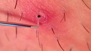 How to remove blackheads on Ingrown hair removal, inflamed follicle, Ance Treatments