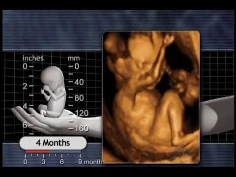 The Biology of Prenatal Development: 4 months