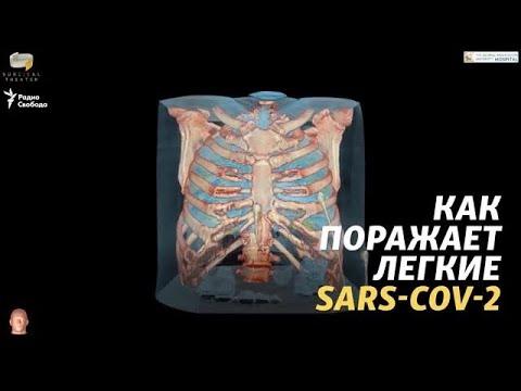 Как поражает легкие SARS-CoV-2