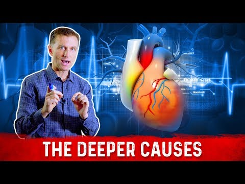 The 7 Causes of Arrhythmias