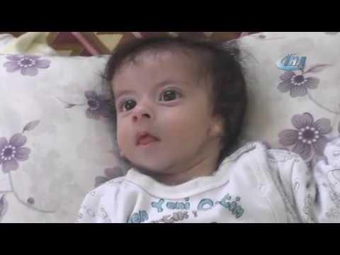 Kulakları olmayan bebek ameliyat olmayı bekliyor