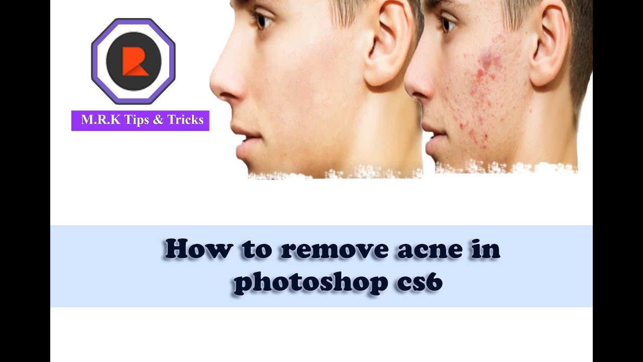 how to add acne in photoshop