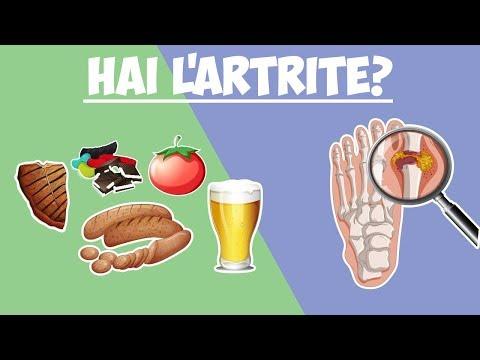 i-10-alimenti-da-evitare-se-hai-l'artrite