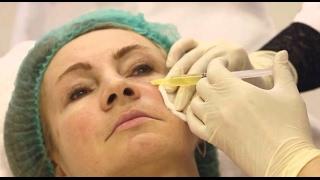 видео Плазмотерапия — молодость внутри!