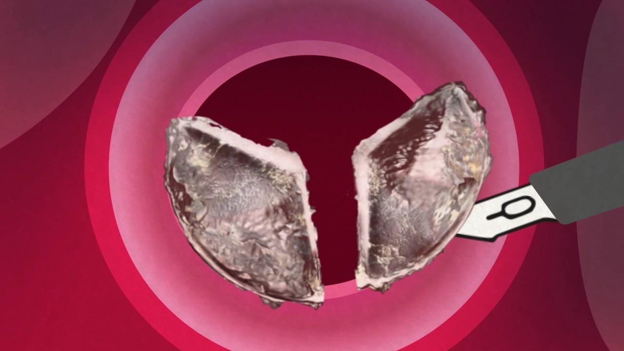 byta hjärtklaff operation